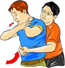 Tips to helping a choking person